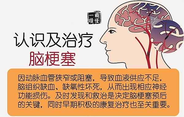 脑梗死发生前会有什么征兆?脑梗塞不只是老年人的专利!
